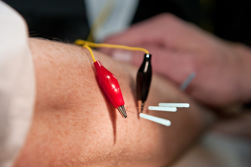 Can Downtown Acupuncture Services Help Me with My Back Pain?